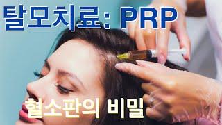 탈모 #1: PRP(혈소판 풍부 혈장)를 이용한 치료 …