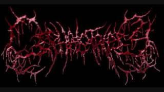 Watch Cephalotripsy Aesthetic Upholstery Of Molested Dead Flesh video