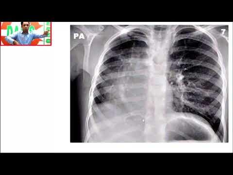 #DAMS #Medicine #Unplugged #Scimitar Sign CXR