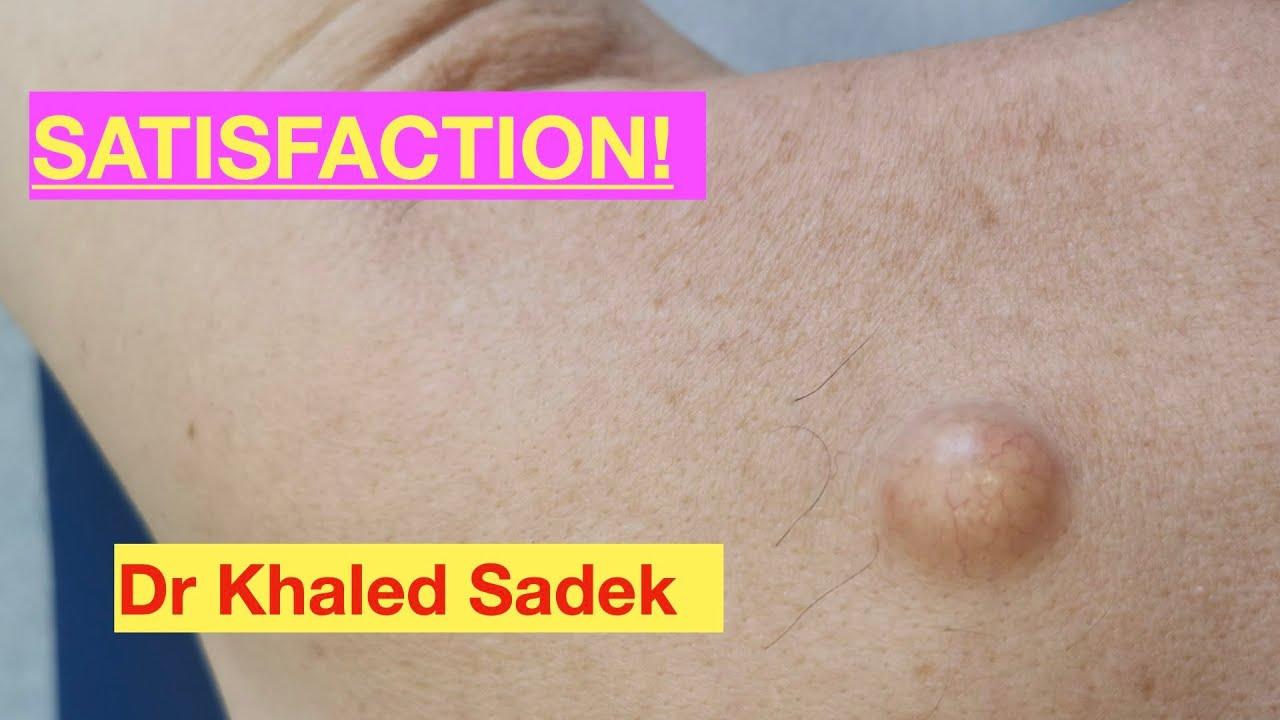 3year old back cyst. Dr Khaled Sadek. LipomaCyst.com