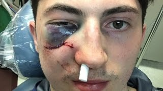 Zach Werenski Takes a Puck TO THE FACE, Out for Playoffs with Facial Fracture