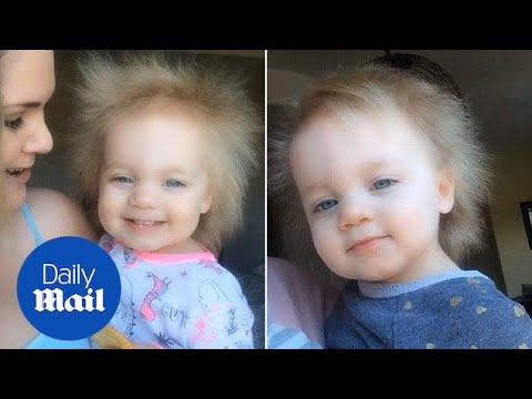 Little Einstein! Baby girl has rare condition that makes hair white - Daily Mail