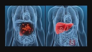 Islet Cell Transplantation Helping With Type I Diabetes
