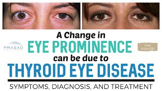 Why Sudden Change of Eye Position/Prominence Should be Checked for Thyroid Eye Disease