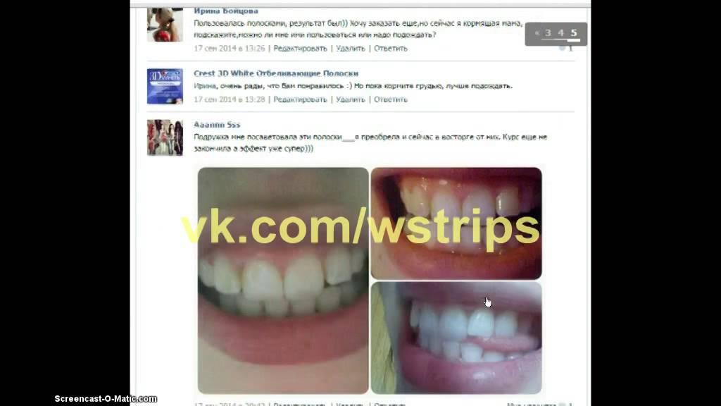 Как отбелить зубы перекисью до и после
