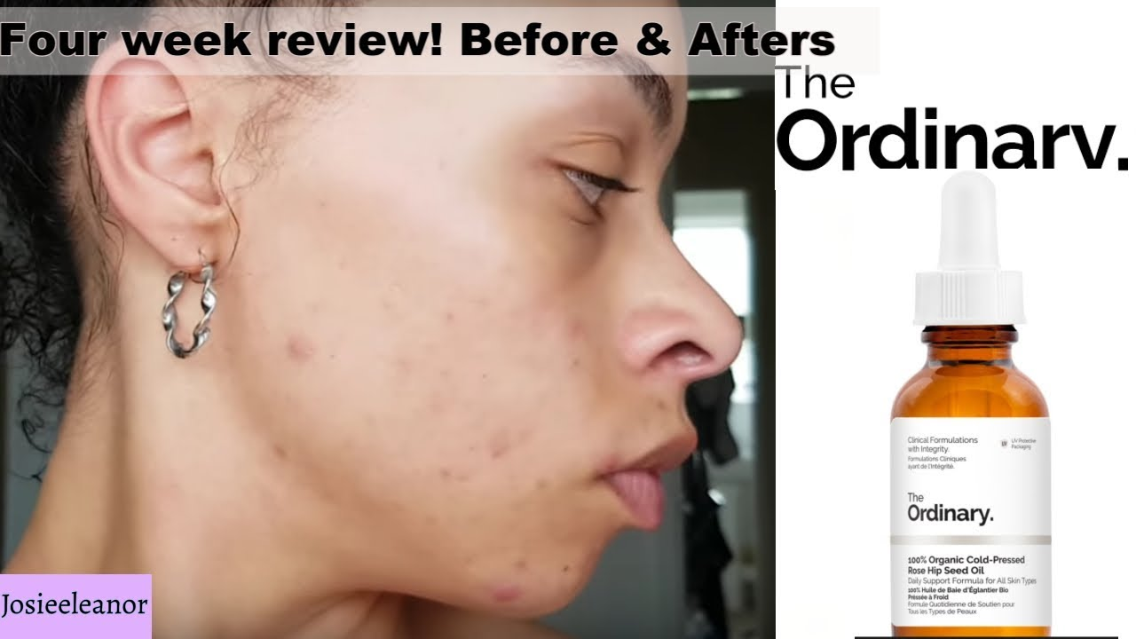 The Ordinary Rosehip Seed Oil Acne Prone Skin