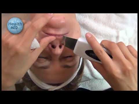 Microdermabrasion Ultrasonic Skin Scrubber