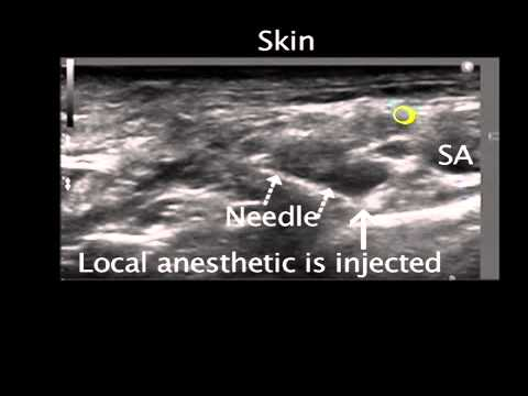 Ultrasound Guided Supraclavicular Nerve Block - YouTube