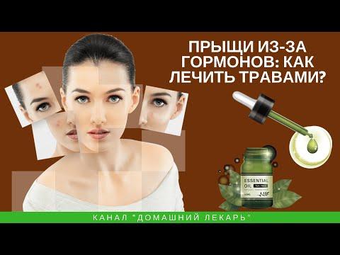 Прыщи из-за гормонов: лечение травами - Домашний лекарь - выпуск №269