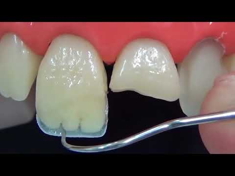 Наращивание зуба переднего