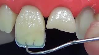 Прямая реставрация переднего зуба за 3 минуты (ускоренное видео). Восстановление переднего зуба
