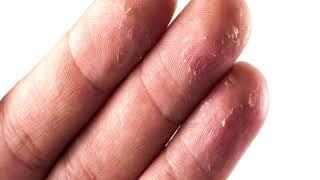 видео Трескаются пальцы на руках что делать, причины и лечение кожи на пальцах рук