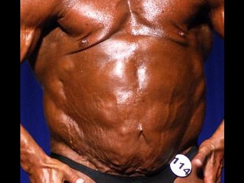 New Bodybuilding Disease: Lennyism
