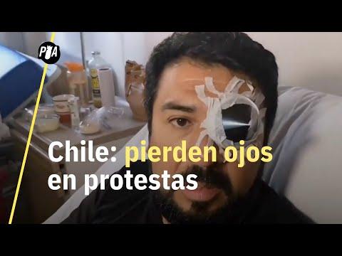 Carabineros disparan contra ojos de manifestantes en Chile; una epidemia deliberada de ceguera