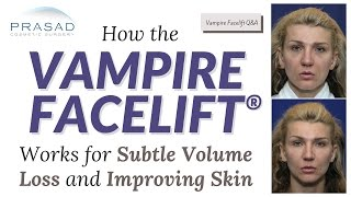 How the Vampire Facelift Augments Subtle Facial Volume and Loss Improves Skin Quality   Amiya Prasad, M.D.