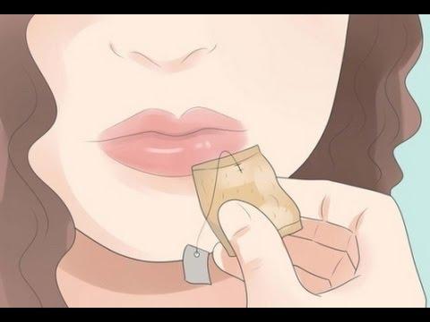 Ampollas en los labios por fiebre