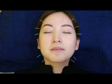 Manage your skin's health with Acupuncture Facial