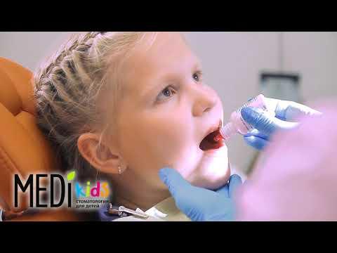 Профессиональная гигиена полости рта у детей. Детская стоматология Меди кидс Киров.