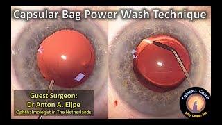 Cataract surgery capsular bag power wash technique