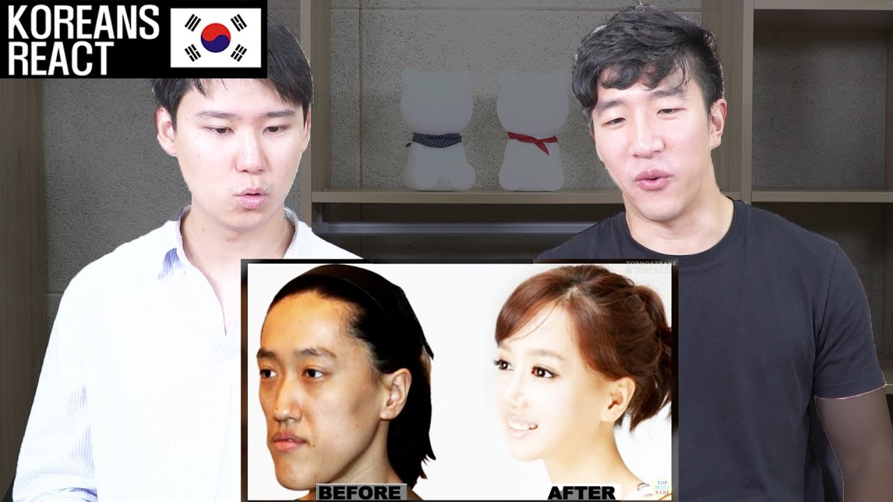 Korean Plastic Surgery Before And After Reaction By
