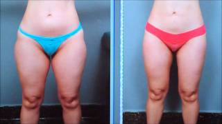 Liposuction of the Thighs - Case Study | Dr. Sterry