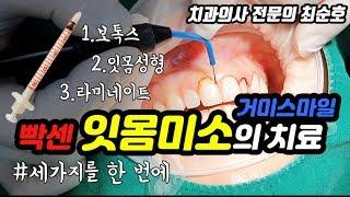 잇몸성형+보톡스+라미네이트로 잇몸미소(거미스마일) 치료…
