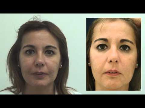 Rejuvenecimiento de la mirada con toxina botulínica (15053)