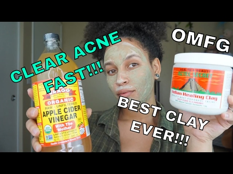 Aztec Secret Indian Healing Clay with Apple Cider Vinegar! | Clear Acne and Dark Spots Fast!