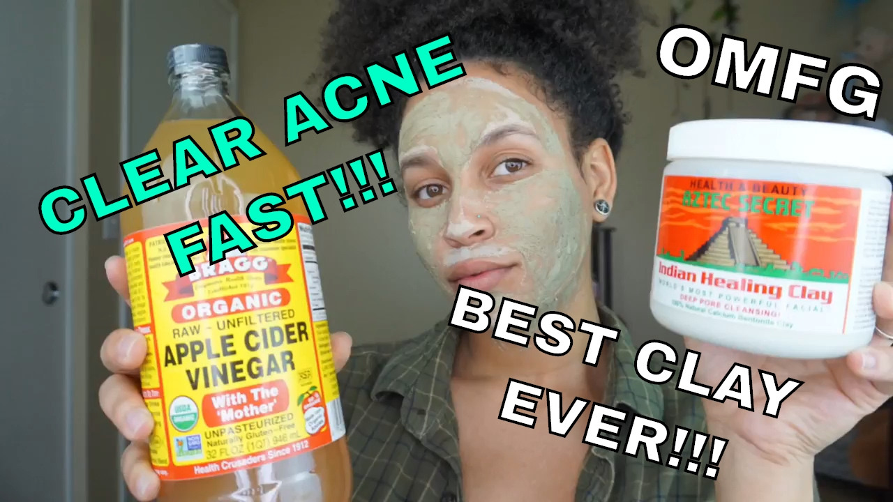 does apple cider vinegar help dark patches