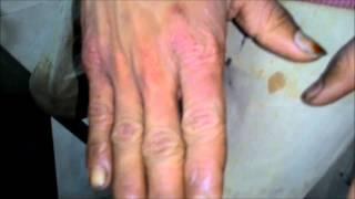 Tinea Manuum - Fungal infection on Palm