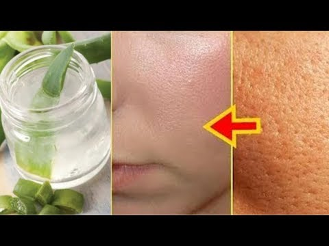 home-remedy-to-get-rid-of-open-pores--how-to-get-rid-of-open-pores
