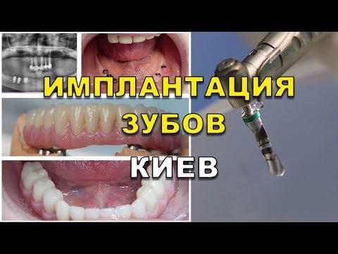 Виды зубных имплантатов -