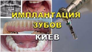 Имплантация зубов Киев видео - стоматология, стоматологические клиники Люми-Дент(, 2017-08-22T06:58:18.000Z)