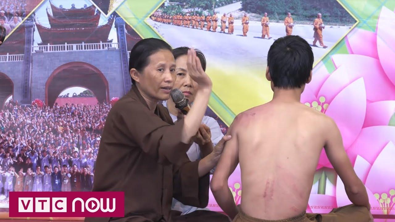 Những hệ lụy từ cách chữa bệnh ở chùa Ba Vàng