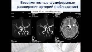 Нейрохирургия - Аневризмы головного мозга у детей(, 2016-06-09T11:08:19.000Z)