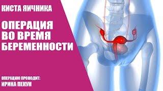 Киста яичника/Операция во время беременности