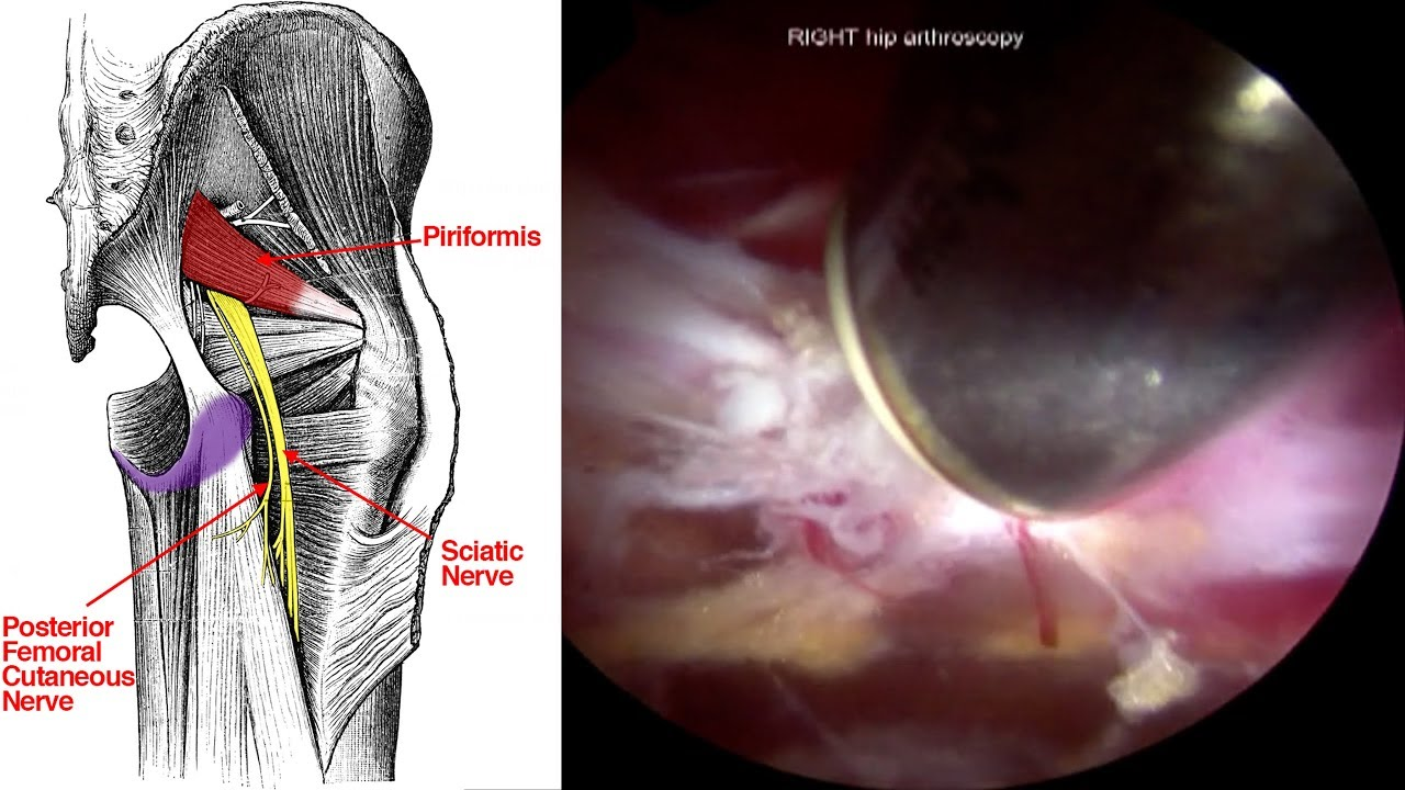 Endoscopic Sciatic Nerve Decompression For Deep Gluteal Syndrome