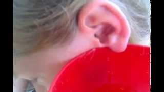 видео Убрать торчащие уши в домашних условиях