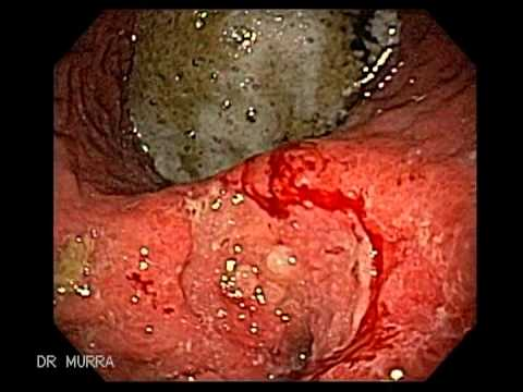 Cáncer Gástrico Endoscopia Gastrointestinal
