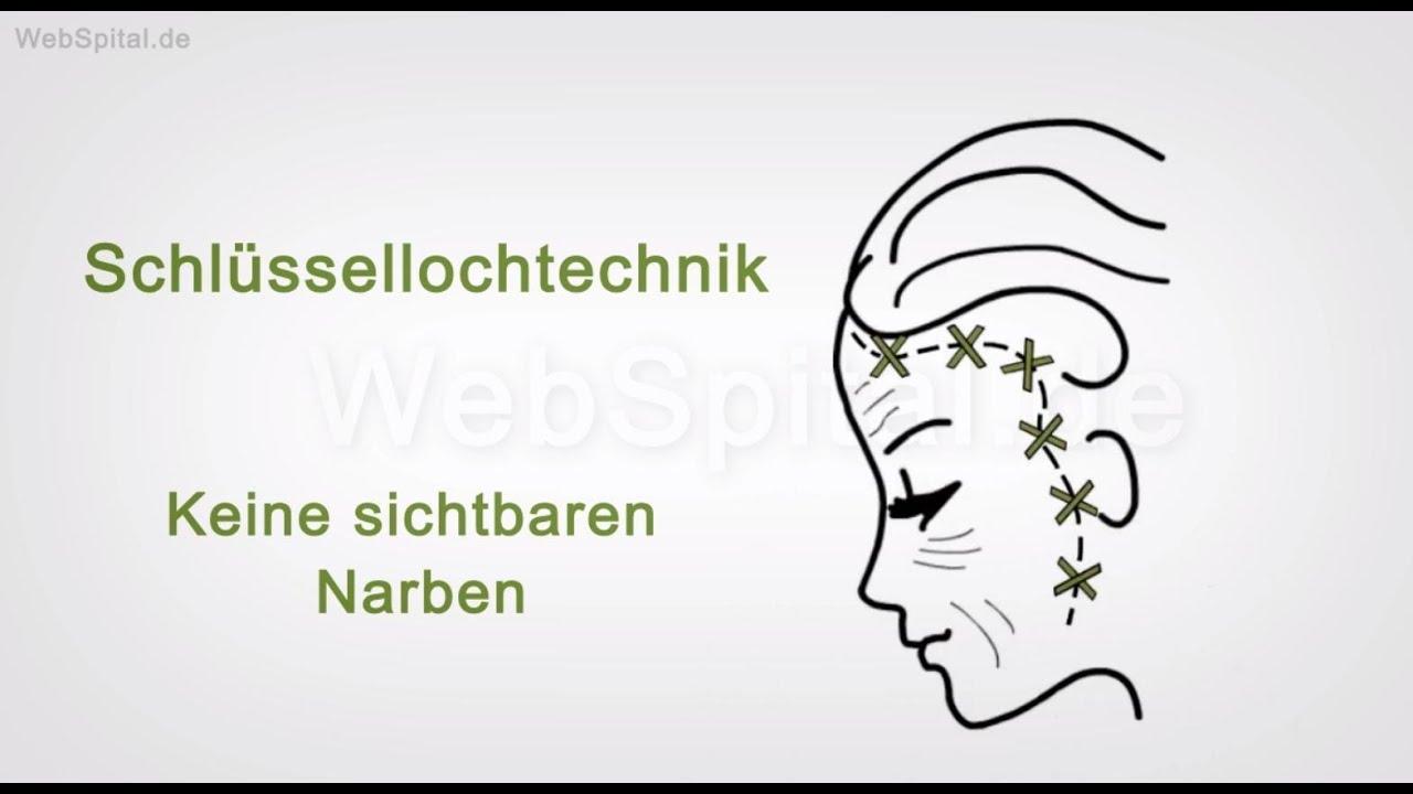 Facelift – endoskopische Gesichtsstraffung - YouTube