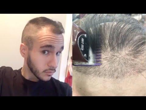 amazing-balding-transformation---full-story-of-balding-at-22
