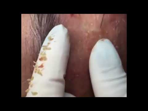 Blackheads/Whiteheads Extraction from YouTube · Duration:  14 minutes 56 seconds