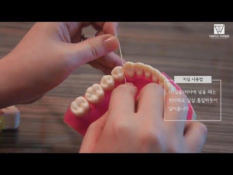 [더와이즈치과병원] 치실 사용법