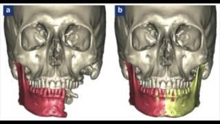 Bases anatomiques de la reconstruction mandibulaire après mandibulectomie