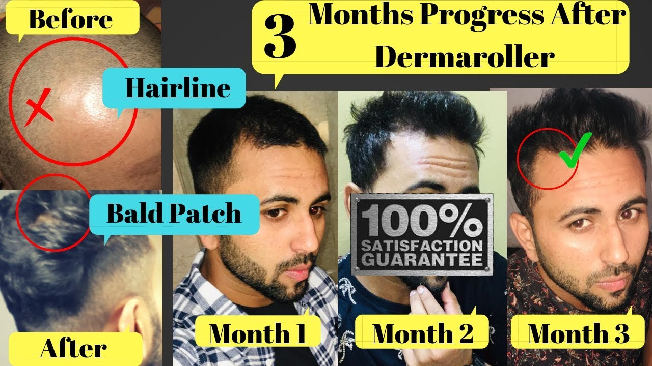 DERMA ROLLER FOR HAIR GROWTH | NEW HACK | 3 MONTHS PROGRESS | HOW TO USE  DERMA ROLLER | GIVEAWAY KIT
