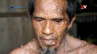 Ditemukan Tumor Seberat 5 Kg di Perut Seorang Pria.