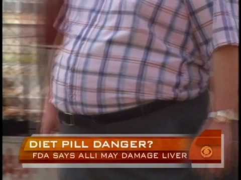 Alli Weight Loss Warning