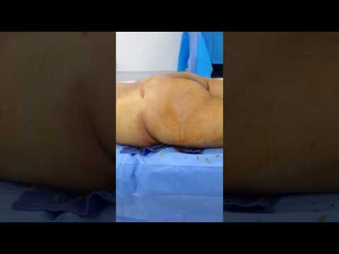 Small Buttocks: Before Butt Implants and Hip and Butt Fat Transfer