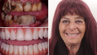 the Life-Changing Smile Makeover of Judy