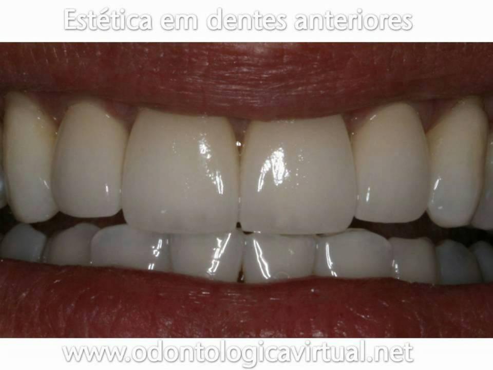 Odontologia Estetica Em Dentes Anteriores Youtube